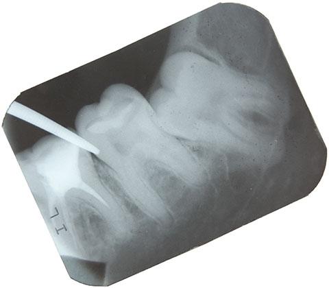 Zahnfüllung Ungarn