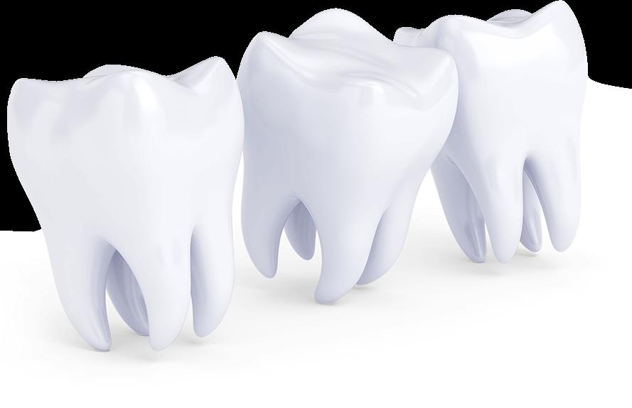 Parodontalbehandlung bei Zahnfleischentzündung in Ungarn