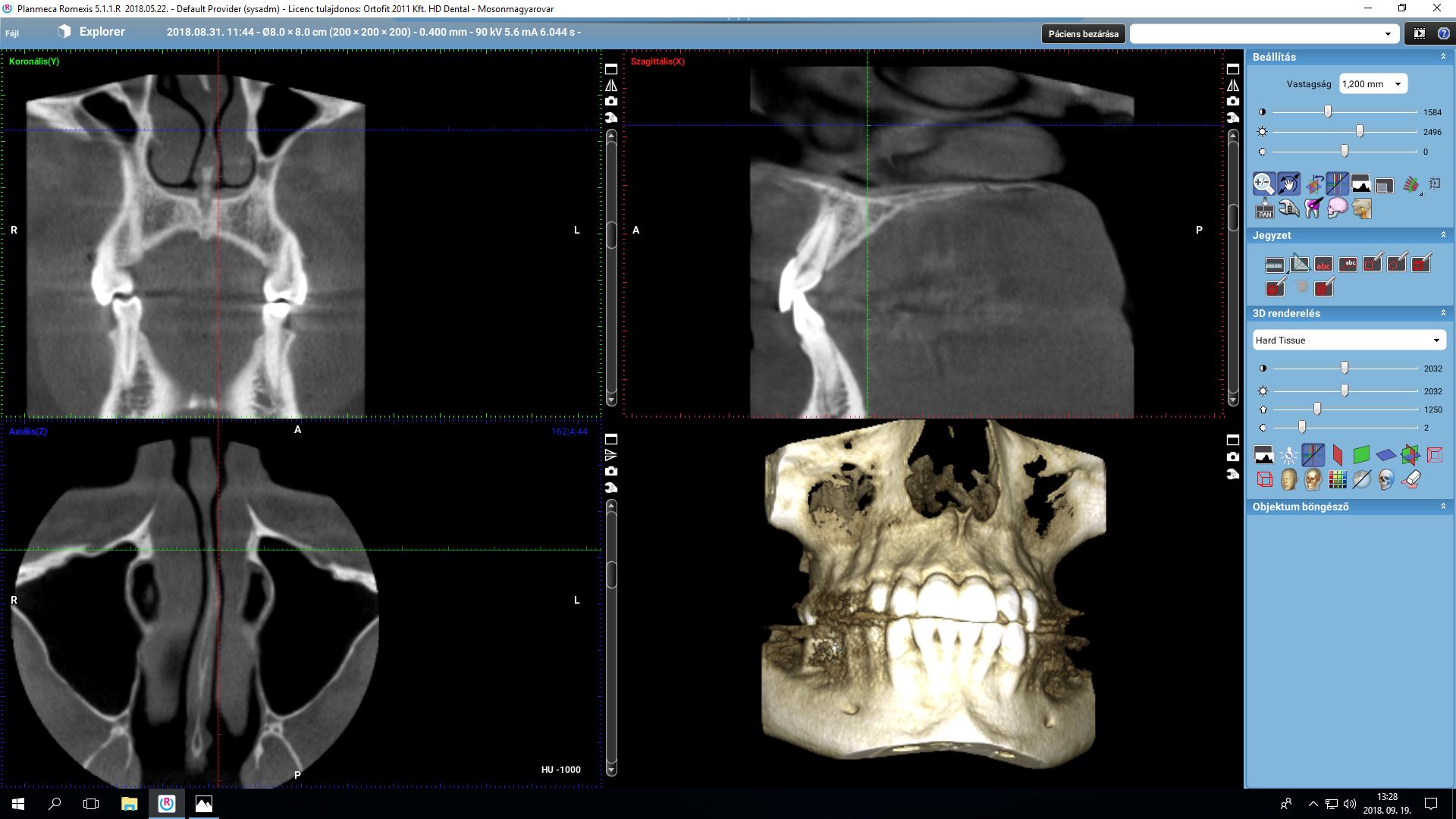 3d-zahnröntgen-planmeca-aufnahme