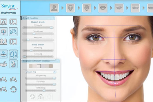 Smylist Design Software bei HD-Dental in Ungarn