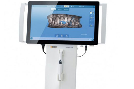 Digitaler Zahnabdruck-Scanner