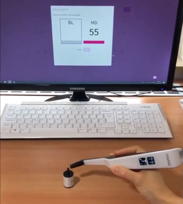 Osstell Beacon misst Implantatstabilität bei HD-Dental